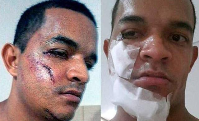 brutal_patada_futbol_brasil_01