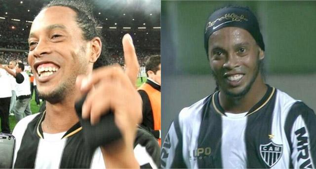 [FOTO] Ronaldinho lució su nueva dentadura
