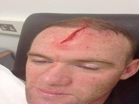 [FOTO] Corte en la cabeza dejaría a Wayne Rooney fuera de los partidos de Inglaterra